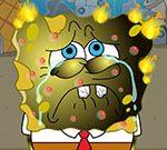 SpongeBob Burn Treatment